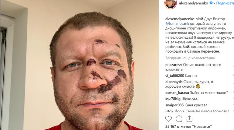 Емельяненко упал в велосипеда и отменил бой